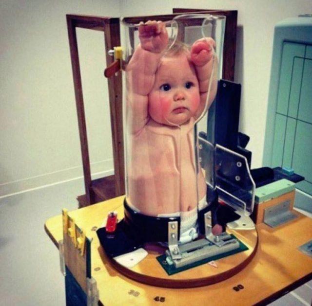 bebês tirando raio x