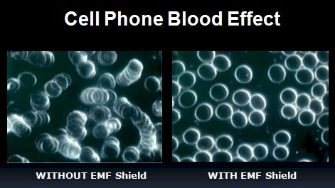 Blood test with and without Aulterra EMF Neutralizers