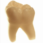 Fluor ist gut für die Zähne und schützt vor Karies?
