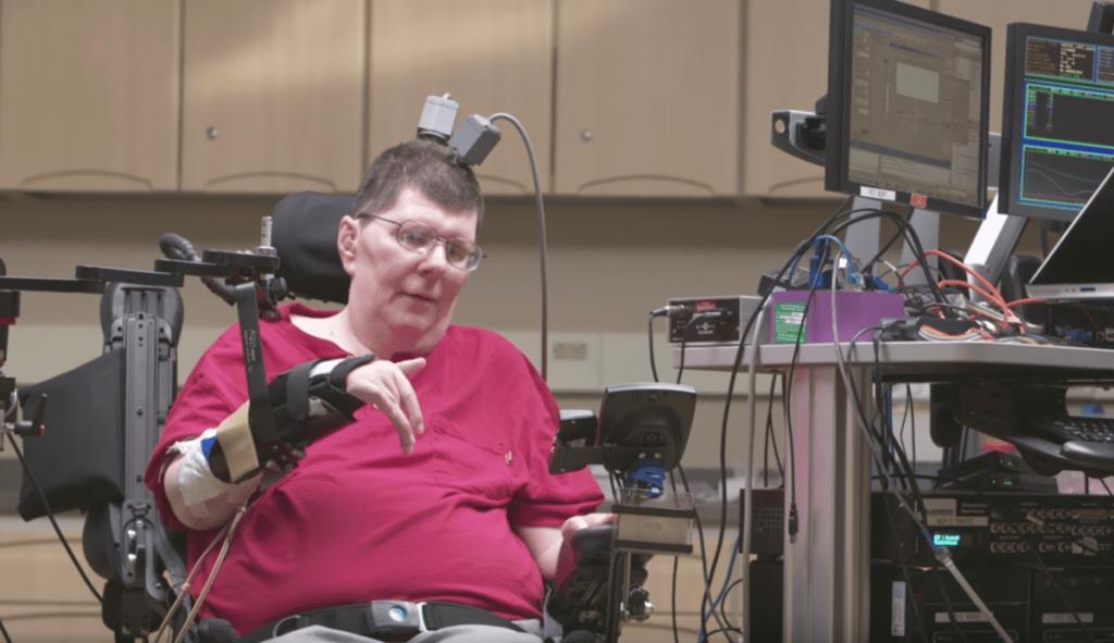 william-kochevar-arm-brain-processor