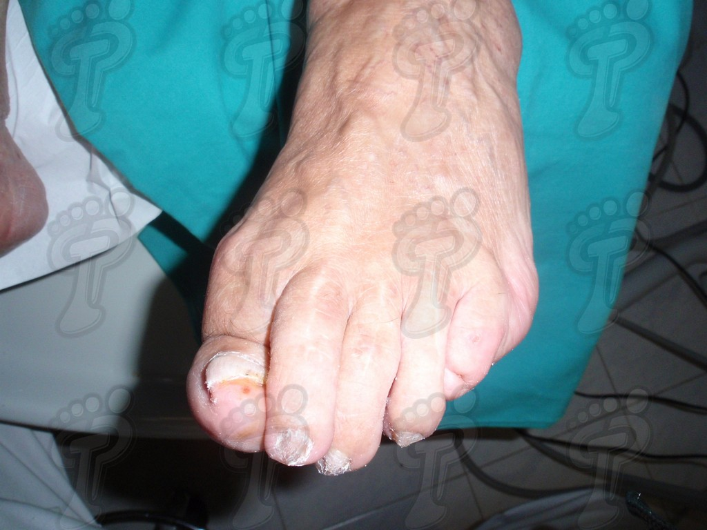 Hallux extensus: first toe deformity in the sagittal plane