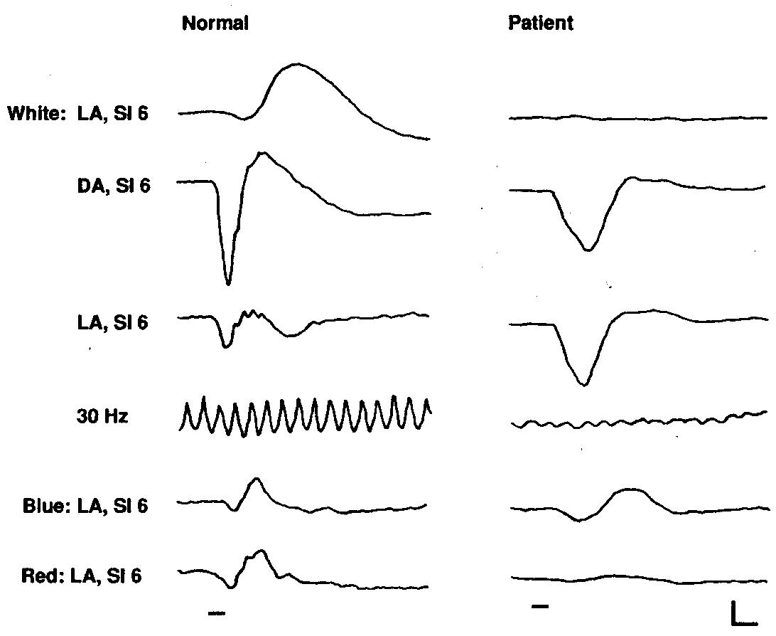 Electroretinogram In Hereditary Retinal Disorders