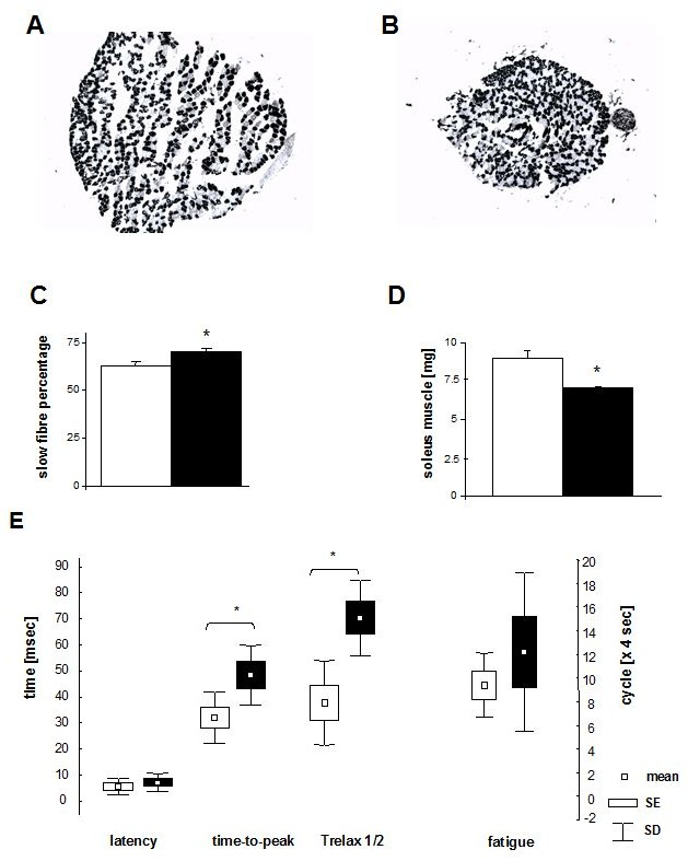 Muscle-Targeted Gene Therapy of Charcot Marie-Tooth