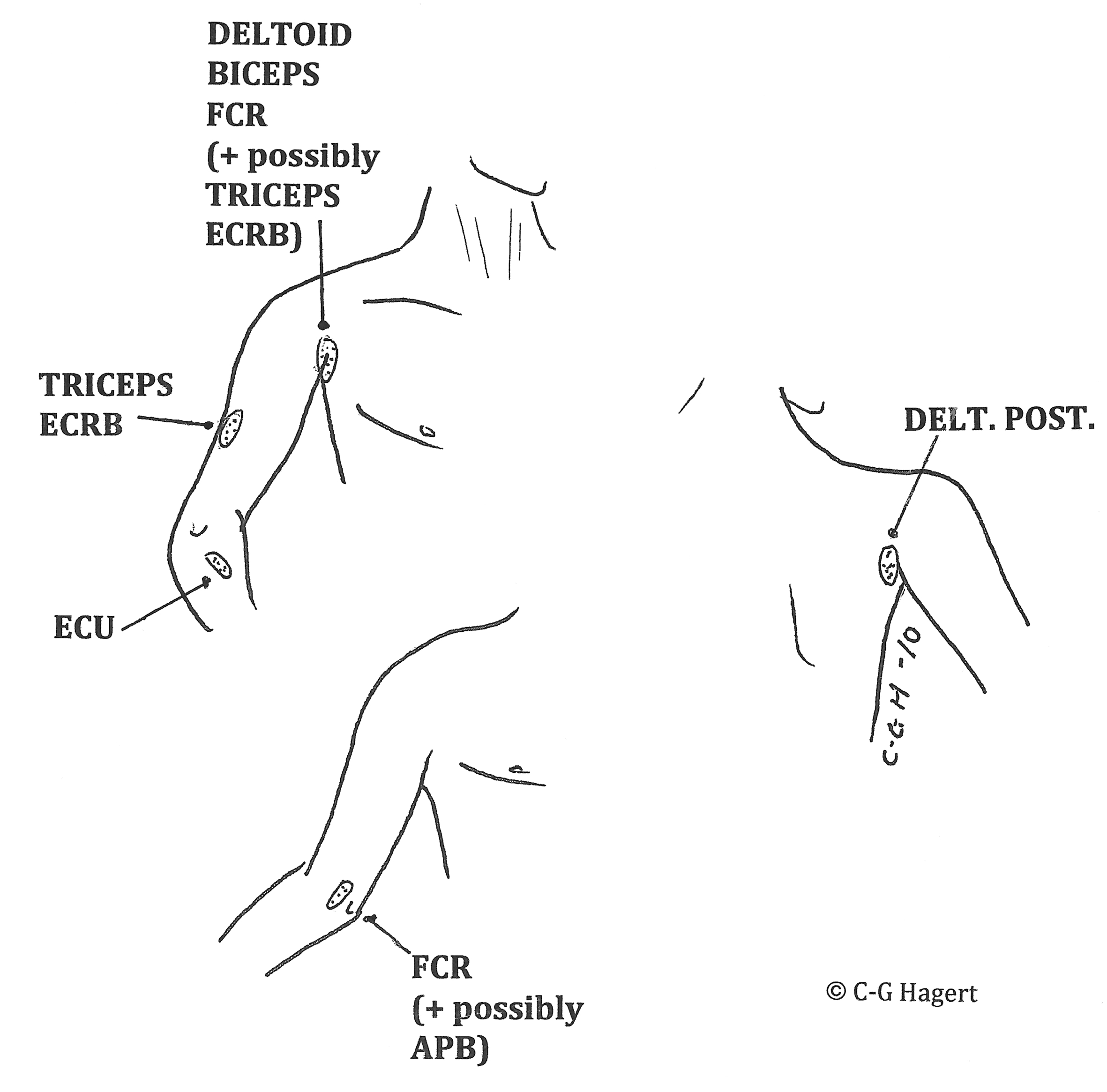 Work Related Upper Limb Pain And Its Diagnosis