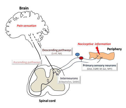 small resolution of figure 1 schematic diagram of pain