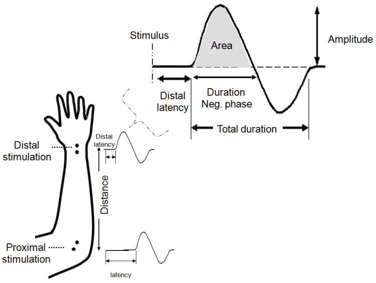 Overview of the Application of EMG Recording in the