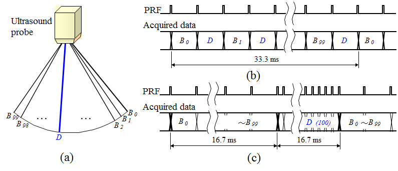 Application of DSP Concept for Ultrasound Doppler Image
