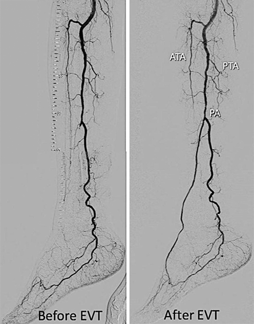 Angiography and Endovascular Therapy for Below-the-Knee