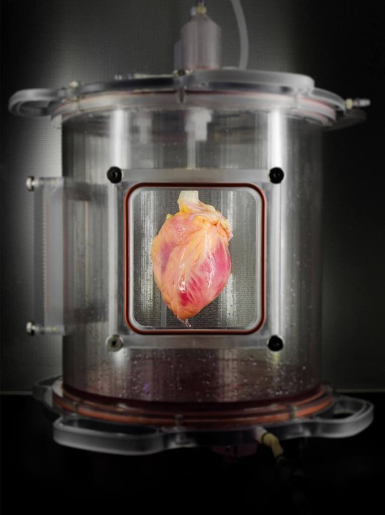 A partially recellularized human whole-heart cardiac scaffold, reseeded with human cardiomyocytes derived from induced pluripotent stem cells, being cultured in a bioreactor that delivers a nutrient solution and replicates some of the environmental conditions around a living heart.