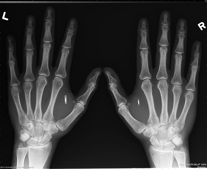 https://i0.wp.com/www.interessantes.at/wissenswertes/ueberwachung/rfid-implantat3.jpg
