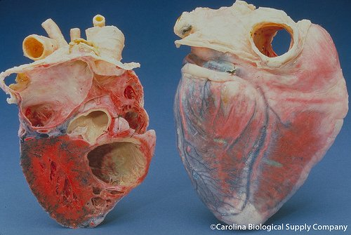 ischemic heart disease - The human heart - Image by Flickr user: Carolina Biological Supply Company
