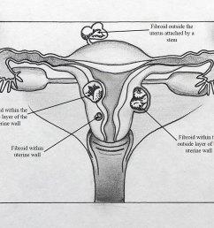 by caroline hodsdon md intermed women s health [ 1200 x 745 Pixel ]