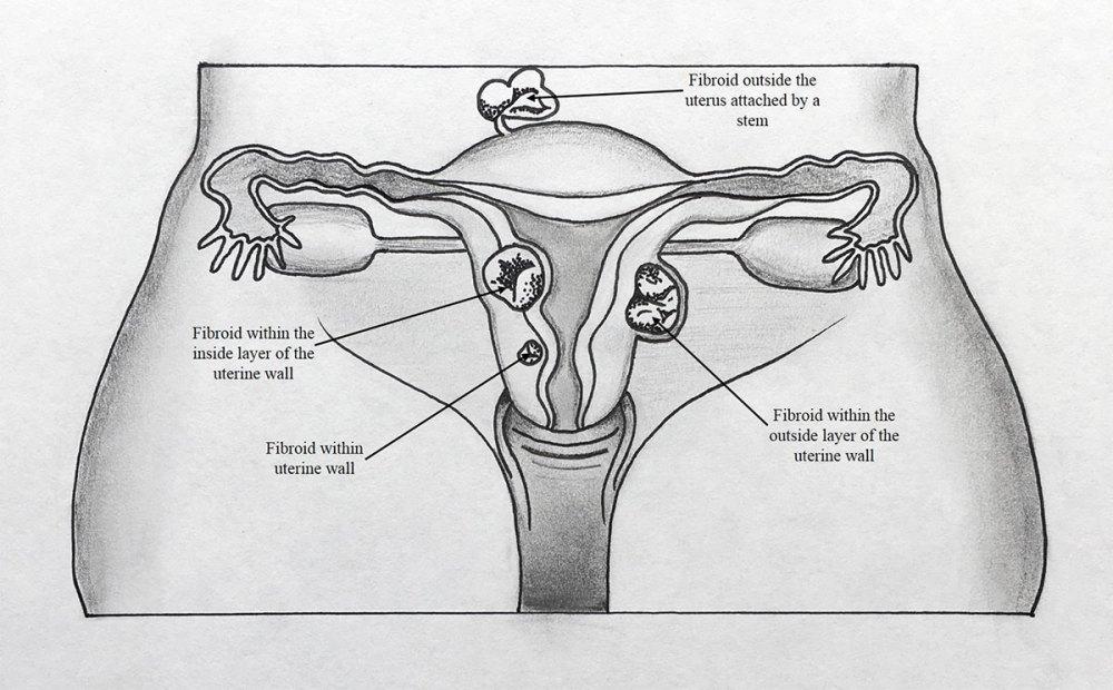 medium resolution of by caroline hodsdon md intermed women s health