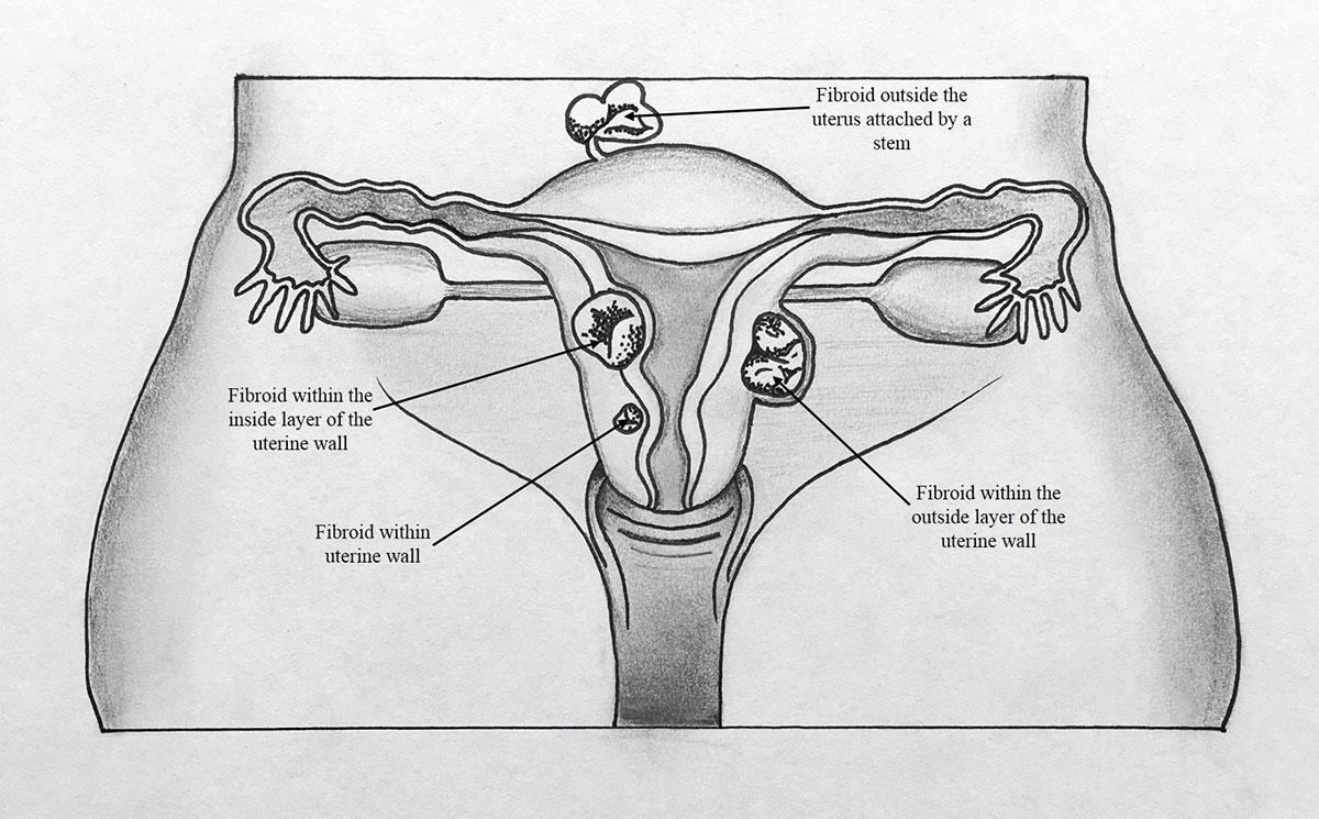 hight resolution of by caroline hodsdon md intermed women s health