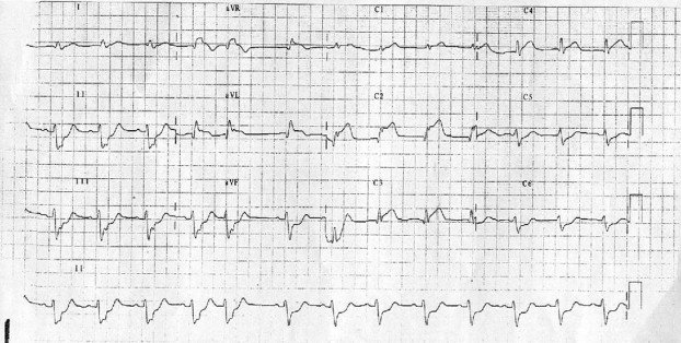 12 lead ECG in the detection of left main coronary artery