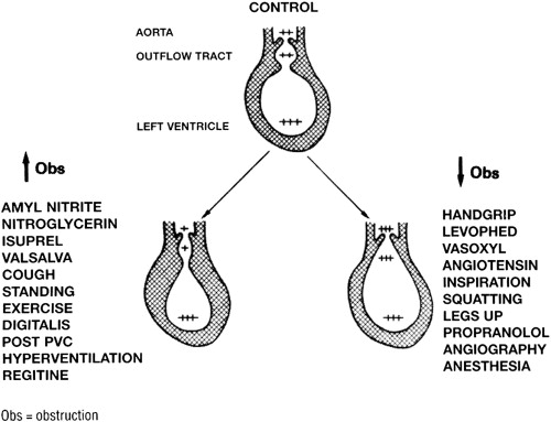 Mechanisms of variability of left ventricular outflow