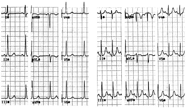 Clinical and electrophysiological characteristics of