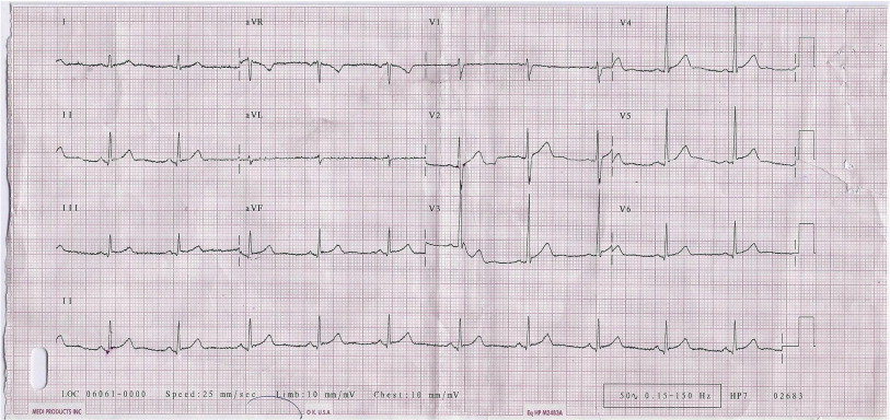 Electrocardiographic changes after severe head injury