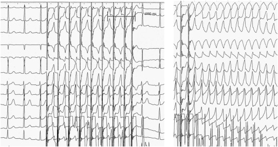 Missing diagnosis of preexcitation syndrome on ECG