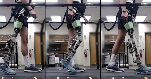 AI Helps Amputees Walk With a Robotic Knee
