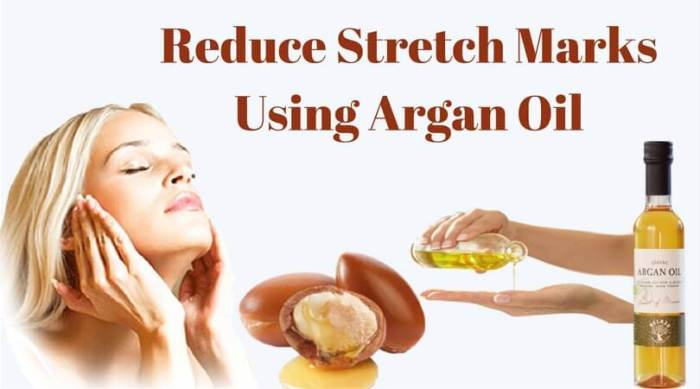 Reduce Strech Mark Using Argan Oil