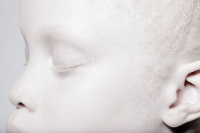 Image credits: Vinicius Terranova albino-twins-models