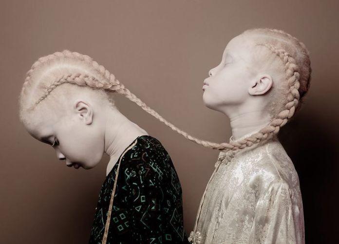 Twins-Albinos
