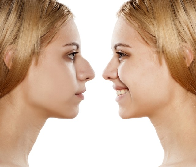 Everything You Need to Know About Getting a Nose Job.