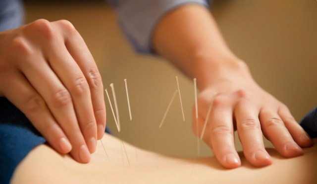 acupuncture Control of Your Bladder