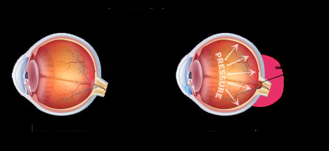 glaucoma image