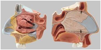 FS6 鼻腔解剖模型