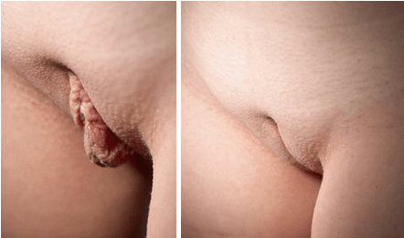 Clitoral hood reduction pics