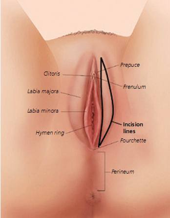Labia Majoraplasty Procedure majora reduction