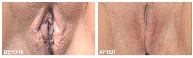 Laser skin tightening columbus, oh