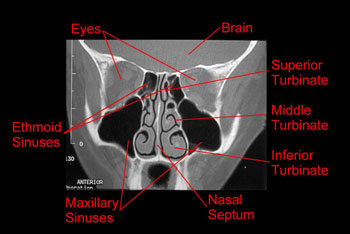 diagram of the nose and its functions eye lens ray nasal anatomy physiology turbinate cross sectional ct