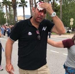 "Catalogna, referendum macchiato dal sangue: 761 feriti. ""Rajoy si dimetta"""