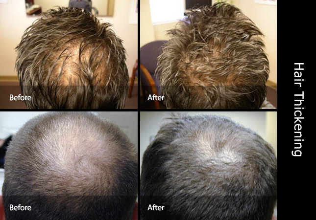 How To Thicken Hair Thickener Thin