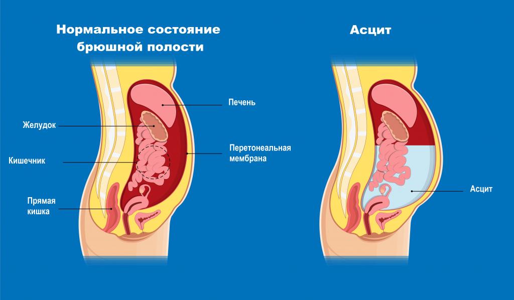 Кішкентай цирроз - морфологиялық диагноз. Зертханалық зерттеулердің көмегімен бауырдағы патологиялық процестің ағынының фактісі анықталған. Морфологияны анықтау үшін аспаптық зерттеулер қажет.