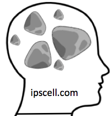 Rocks-in-Your-Head.png