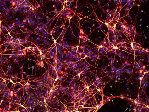 Neurons created from ciNSC