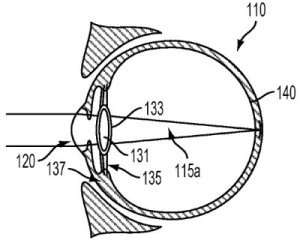 intra-ocular device