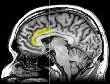 anterior cingulate cortext mistakes