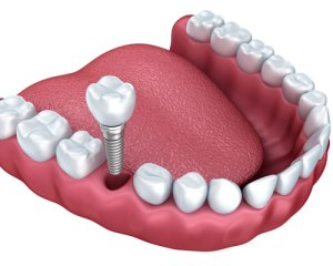 Canton Dentist Dental Implants