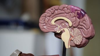 When it comes to stroke, prevention is the best medicine