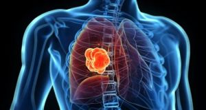 Image result for A decline in top three male cancers as lung cancer rates continue to rise among our women