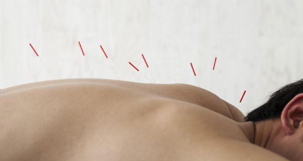 alternative therapies putting acupuncture