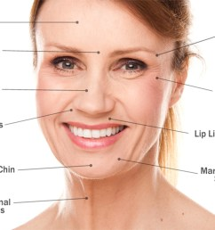 u00bb the inside to dermal fillers and what they do beauty botox diagram mechanism of action [ 2222 x 1467 Pixel ]