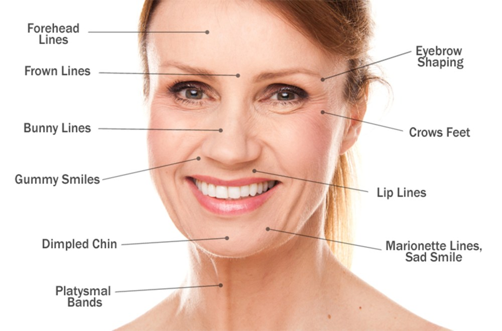 medium resolution of u00bb the inside to dermal fillers and what they do beauty botox diagram mechanism of action