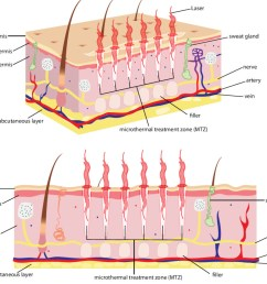 skin diagram how laser works on skin [ 1024 x 824 Pixel ]