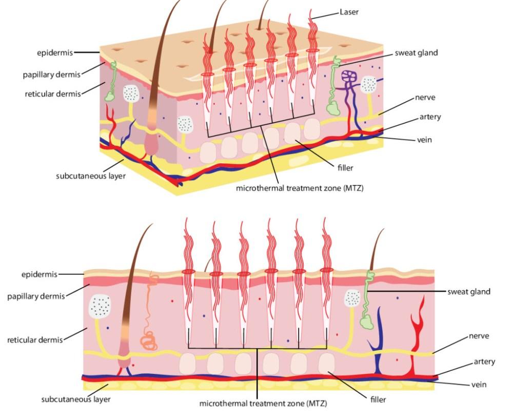 medium resolution of skin diagram how laser works on skin
